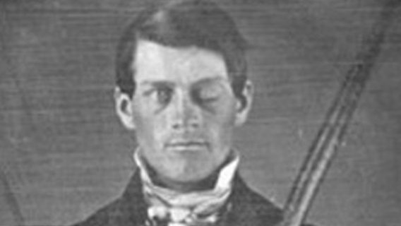Phineas_gage