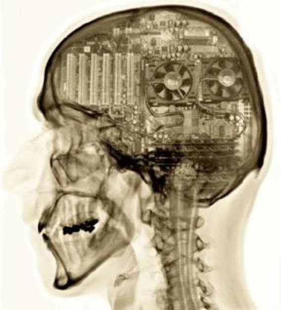 Mammalian-brain-computer-inside
