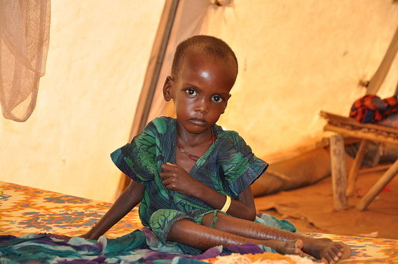 800px-a_malnourished_child_in_an_msf_treatment_tent_in_dolo_ado