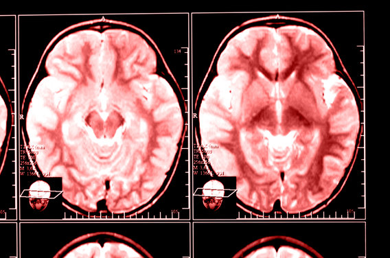Brain_scan_red