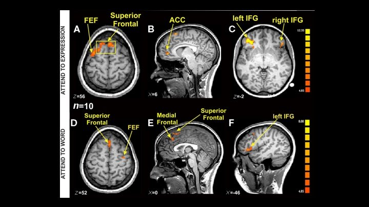 Uh-Oh. Is Our Faith in fMRI Brain Studies Misplaced?