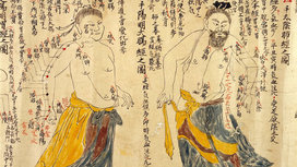 Chinese_acupuncture