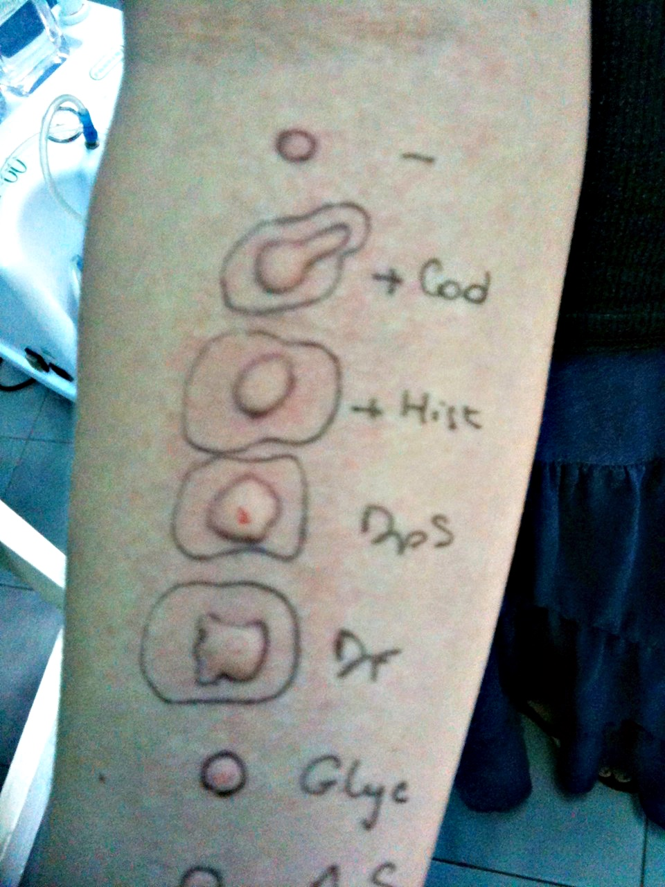 positive allergy tests